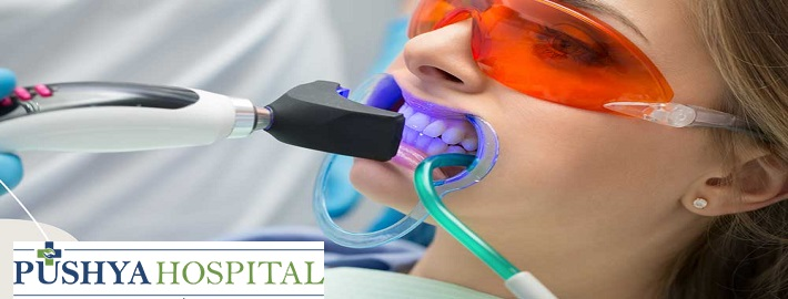 Teeth Whitening in Ahmedabad